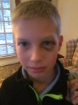 Luke's periorbital hematoma, a.k.a. shiner,